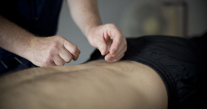 Acupuncture for Lower Back Pain Steve Coster Acupuncture Southend