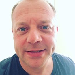 Bell's palsy Steve Coster Acupuncture Southend