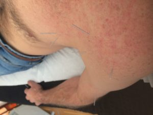 Shoulder Pain with Steve Coster Acupuncture