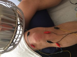 Knee pain Steve Coster Acupuncture